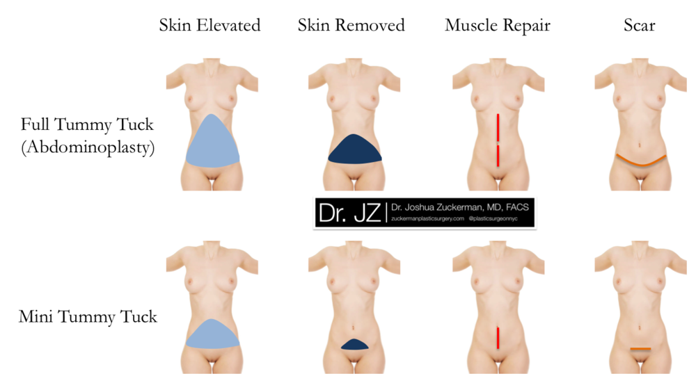Abdominoplasty (Full Tummy Tuck) versus Mini Tummy Tuck