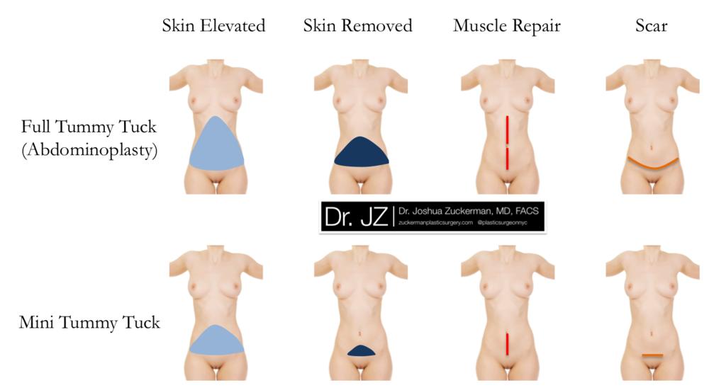Abdominoplasty (Full Tummy Tuck) versus Mini Tummy Tuck