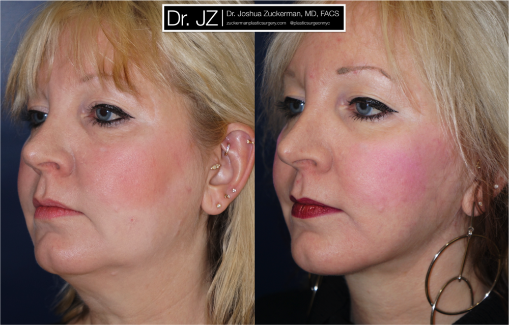 Face lift surgery performed by Dr. Zuckerman before & after outcome left oblique 1yr post-op. For more of Dr. Zuckerman's face lift surgery before & after images, visit the full Before & After Page.