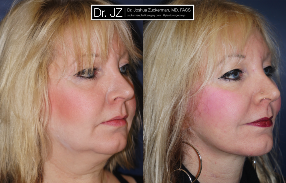 Face Lift Surgery Right Oblique 1yr Post-Op by Dr. Zuckerman