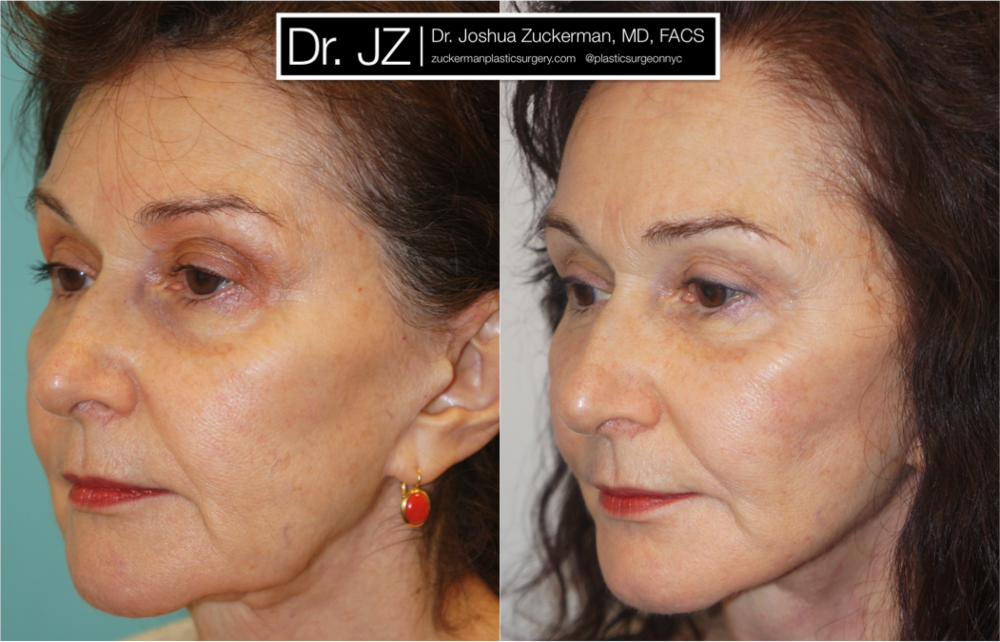 Face Lift Surgery Left Oblique 1yr Post-Op by Dr. Zuckerman