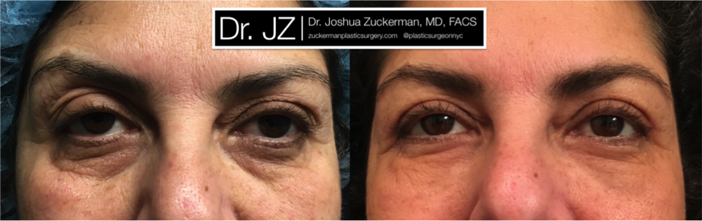 Upper eyelid surgery (Blepharoplasty) with fat grafting to lower eyelids and tear troughs performed by Dr. Zuckerman. Outcome frontal view is 1month post-op. View more before & after images for Dr. Zuckerman's Blepharoplasty (Eyelid Surgery) patients on the Before & After page.