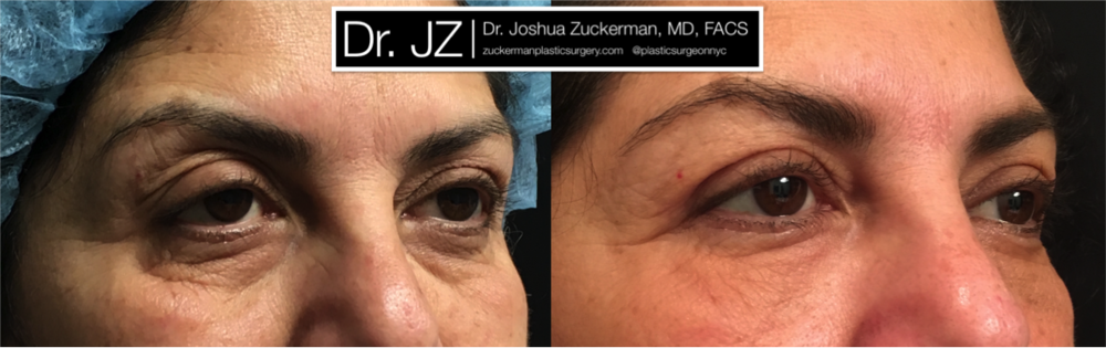 Upper Eyelid Surgery plus Fat Grafting to Lower Eyelids result Right Oblique by Dr. Zuckerman