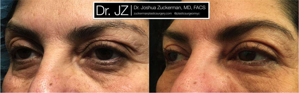 Upper Eyelid Surgery plus Fat Grafting to Lower Eyelids result Left Oblique by Dr. Zuckerman