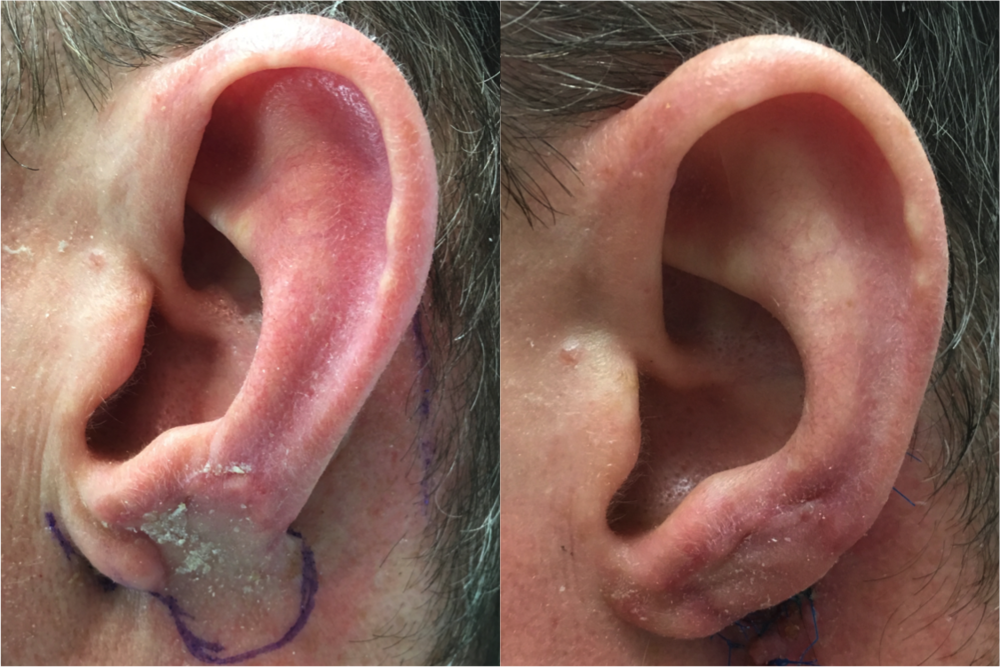 Ear Reconstruction  by Dr. Zuckerman Stage 2. Flap is detached and ear lobe