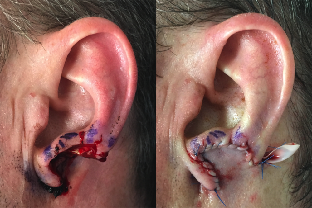 Ear Reconstruction by Dr. Zuckerman: Stage 1. Flap is created from behind the ear and attached to ear defect