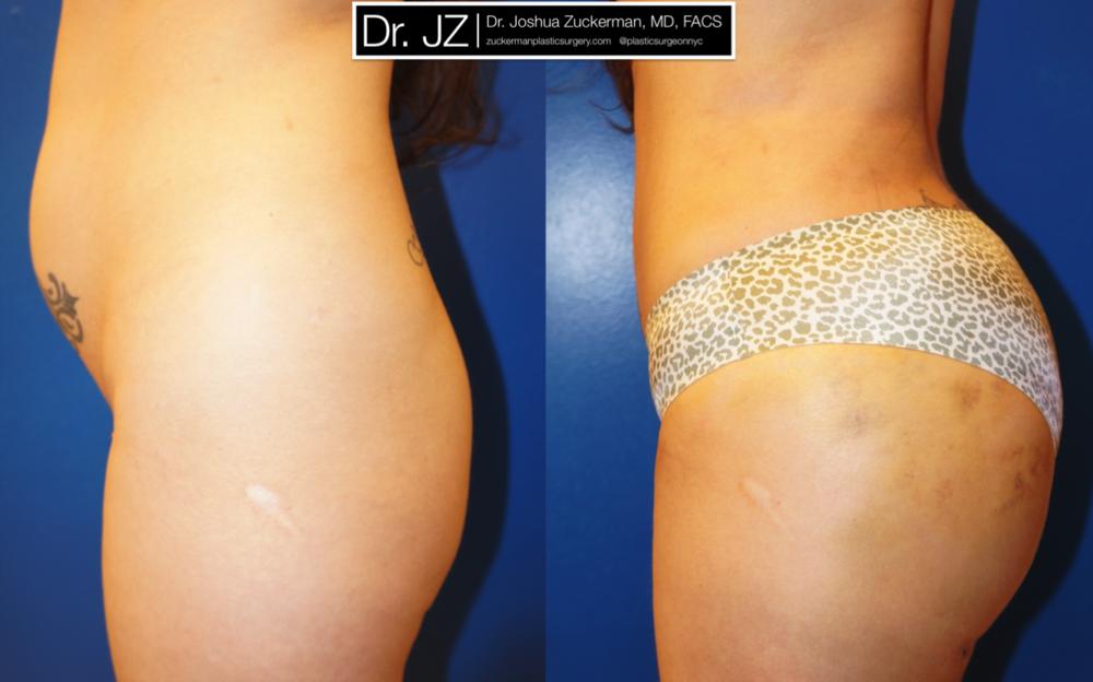 Featured Buttock Augmentation (Brazilian Butt Lift) #1 by Dr. Joshua Zuckerman, Left Profile View