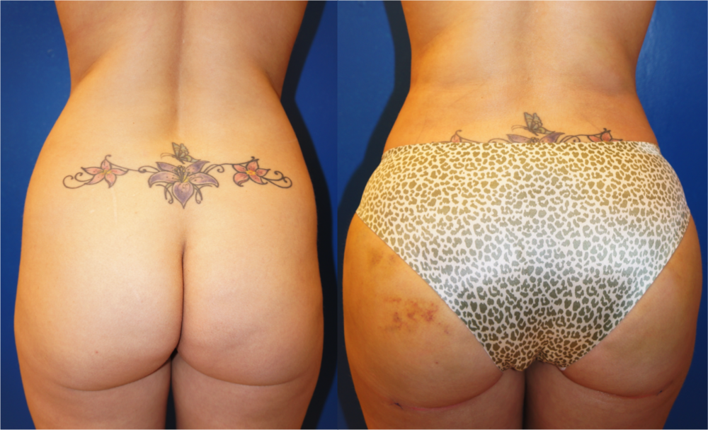 Featured Buttock Augmentation (Brazilian Butt Lift) #1 by Dr. Joshua Zuckerman, Back View