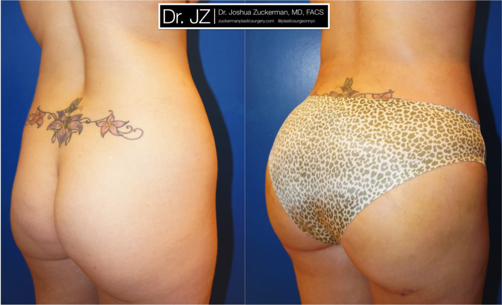 Featured Buttock Augmentation (Brazilian Butt Lift) #1 by Dr. Joshua Zuckerman, Right Oblique View