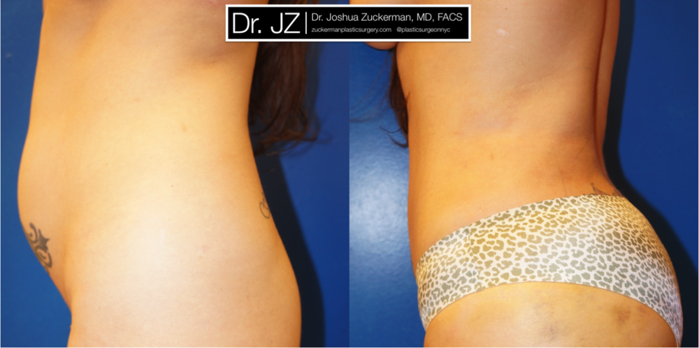 Featured Liposuction by Dr. Joshua Zuckerman, Left Profile View