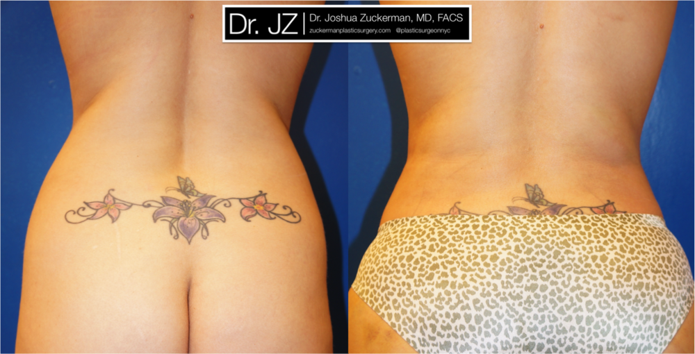 Featured Liposuction by Dr. Joshua Zuckerman, Back View