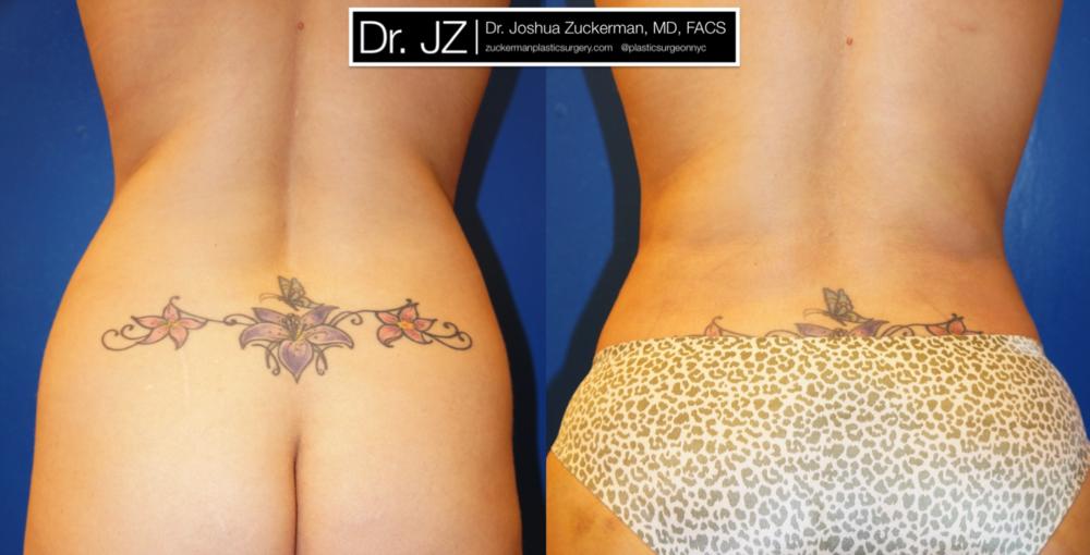 Featured Liposuction #2 by Dr. Joshua Zuckerman, Back View