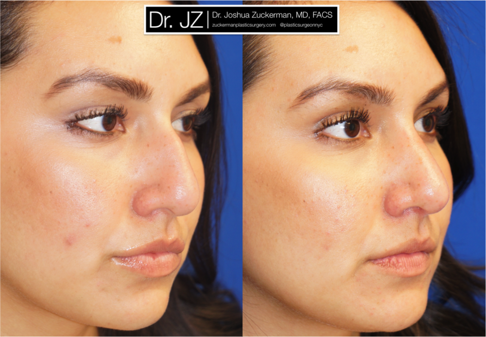 Featured Rhinoplasty (Nose Surgery) #1 by Dr. Joshua Zuckerman, Right Oblique View