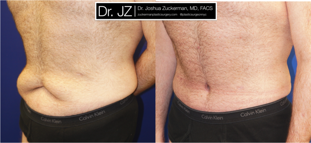 Featured Male Plastic Surgery (Tummy Tuck) #1 by Dr. Joshua Zuckerman, Left Oblique View