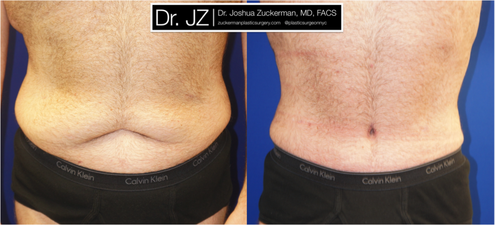 Featured Male Plastic Surgery (Tummy Tuck) #1 by Dr. Joshua Zuckerman, Frontal View