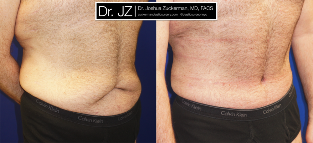Featured Male Plastic Surgery (Tummy Tuck) #1 by Dr. Joshua Zuckerman, Right Oblique View