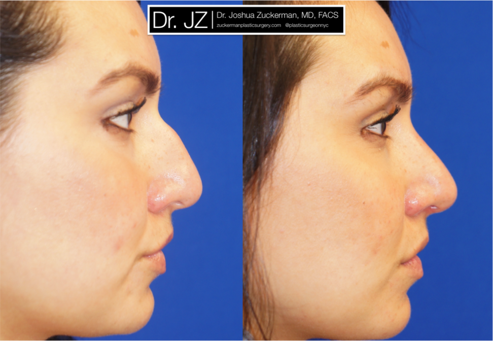 Rhinoplasty performed by Dr. Zuckerman. Outcome right profile view is 2mos post-op. View more of Dr. Zuckerman's Rhinoplasty before & after photos on the full Before & After Page.