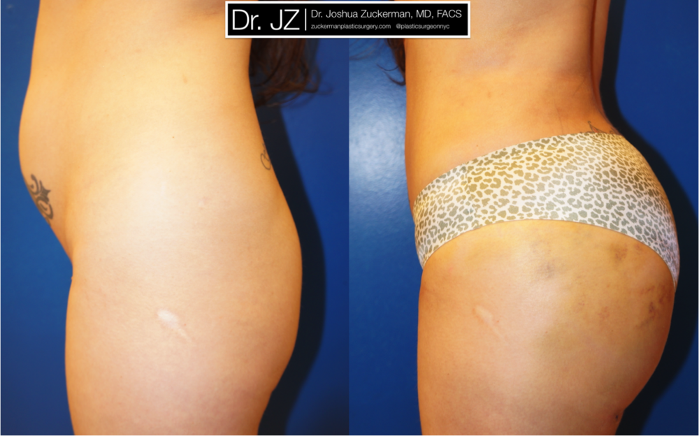 Buttock augmentation (Brazilian Butt Lift) performed by Dr. Zuckerman. Fat removed from the abdomen and flanks via liposuction, then grafted to the buttocks. See more of Dr. Zuckerman's Buttock Augmentation before and after photos on the full Before & After Page.