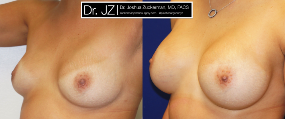 Featured Breast Augmentation #3 by Dr. Joshua Zuckerman, Left Oblique View