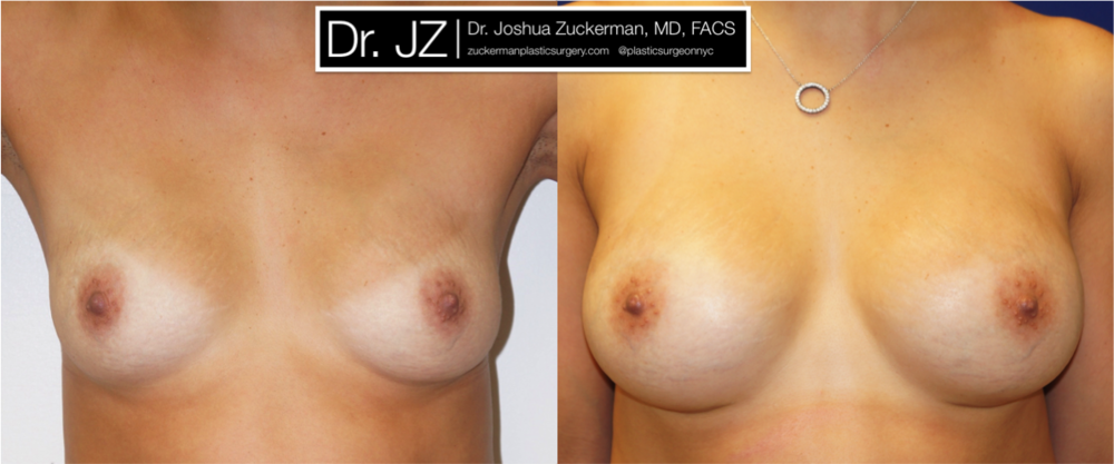 Featured Breast Augmentation #3 by Dr. Joshua Zuckerman, Frontal View