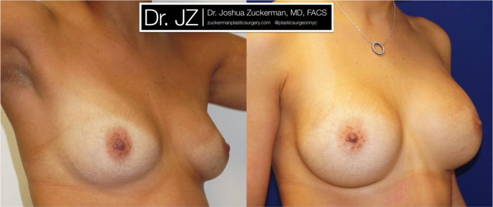 Featured Breast Augmentation #3 by Dr. Joshua Zuckerman, Right Oblique View