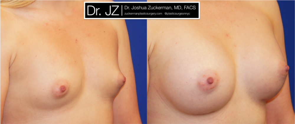 Featured Breast Augmentation #4 by Dr. Joshua Zuckerman, Right Oblique View