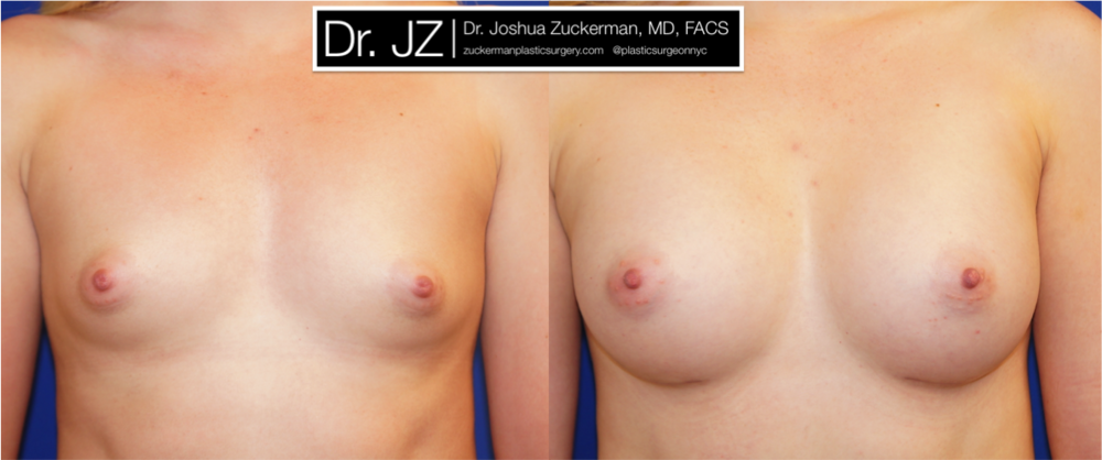Featured Breast Augmentation #4 by Dr. Joshua Zuckerman, Frontal View