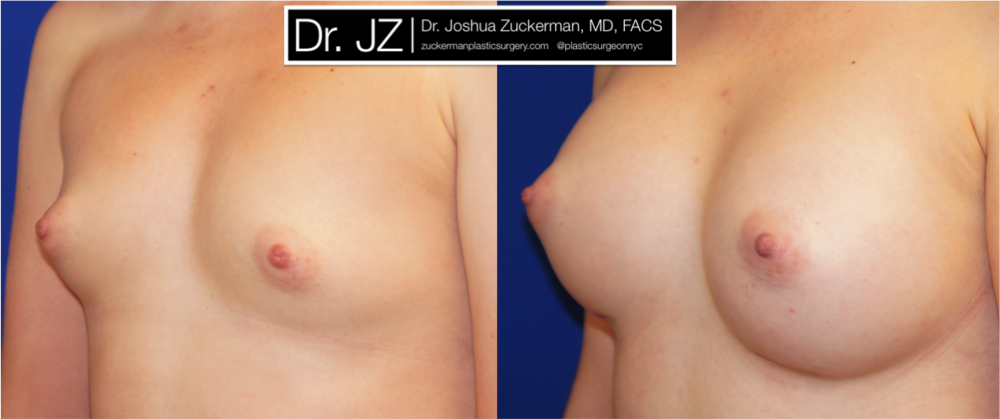 Featured Breast Augmentation #4 by Dr. Joshua Zuckerman, Left Oblique View