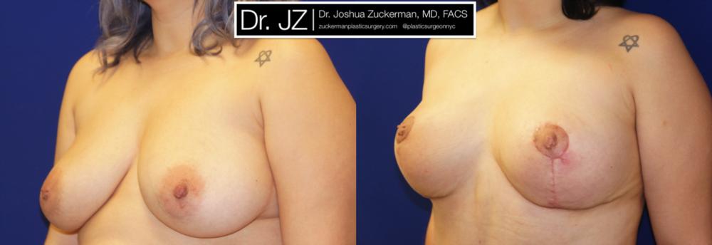Featured Breast Lift (Mastopexy) #1 by Dr. Joshua Zuckerman, Left Oblique
