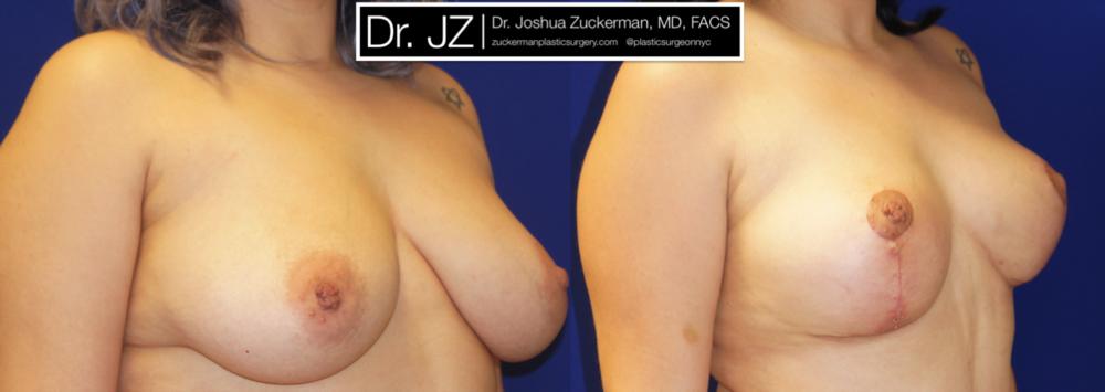 Featured Breast Lift (Mastopexy) #1 by Dr. Joshua Zuckerman, Right Oblique View