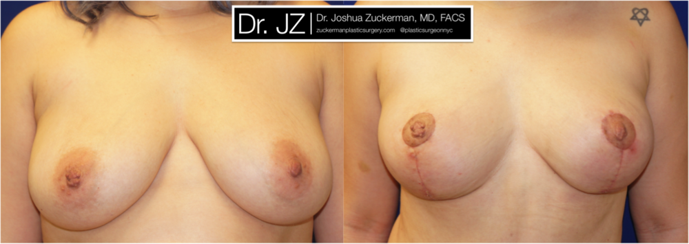 Featured Breast Lift (Mastopexy) #1 by Dr. Joshua Zuckerman, Frontal View