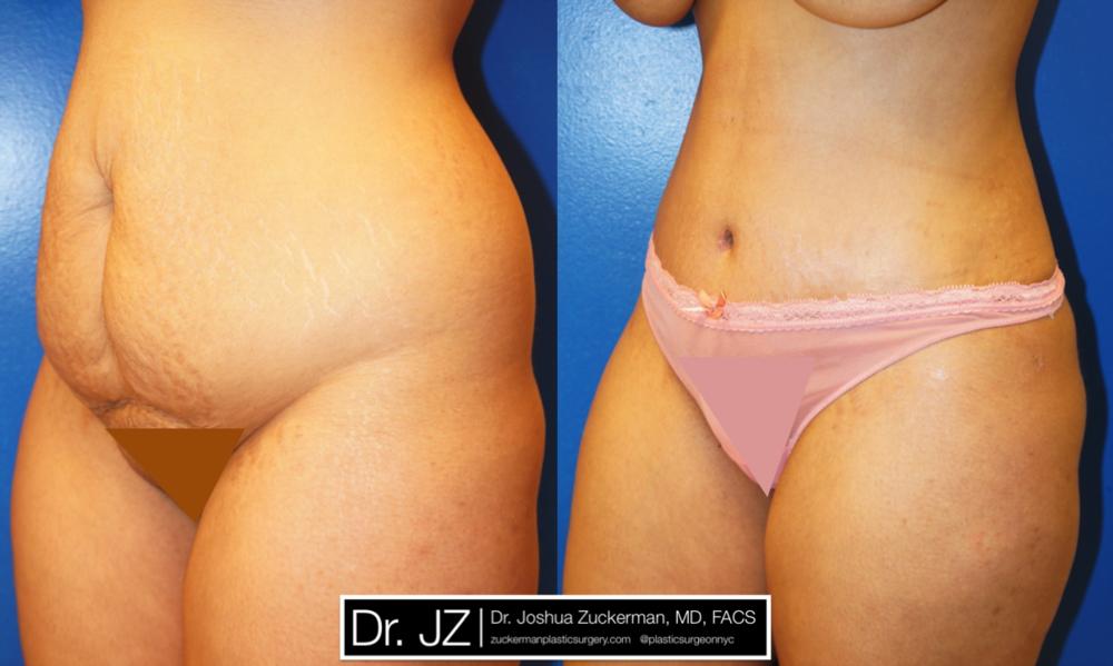 Featured Tummy Tuck Surgery (Abdominoplasty) #1 by Dr. Joshua Zuckerman, Left Oblique View
