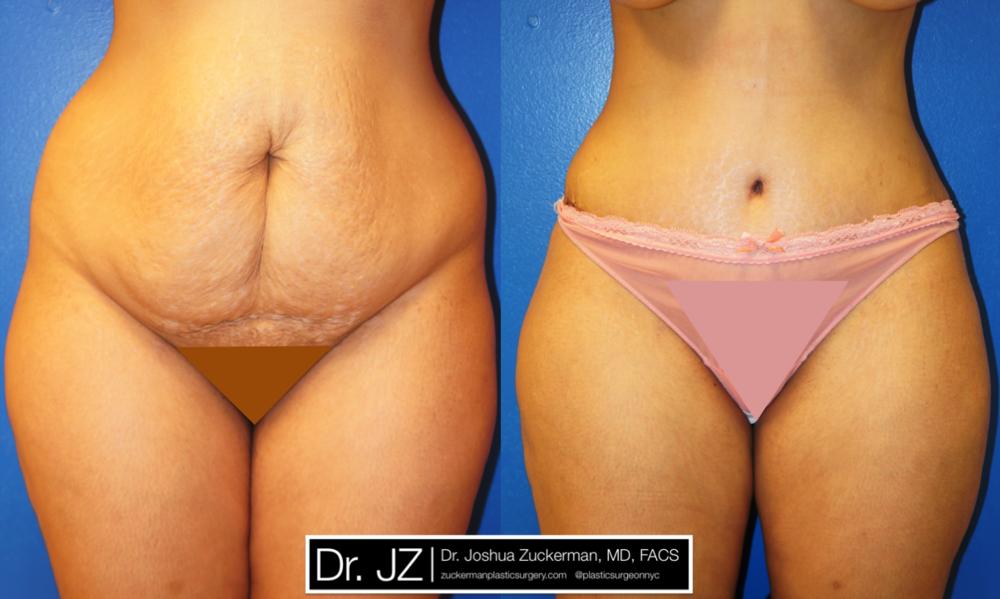 Featured Tummy Tuck Surgery (Abdominoplasty) #1 by Dr. Joshua Zuckerman, Frontal View