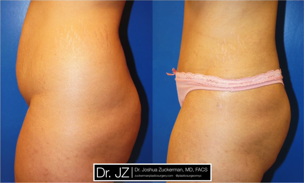 Featured Tummy Tuck Surgery (Abdominoplasty) by Dr. Joshua Zuckerman, Left Profile View