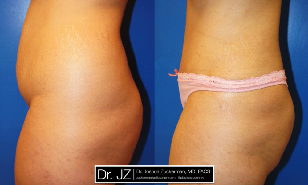 Featured Tummy Tuck Surgery (Abdominoplasty) #1 by Dr. Joshua Zuckerman, Left Profile View