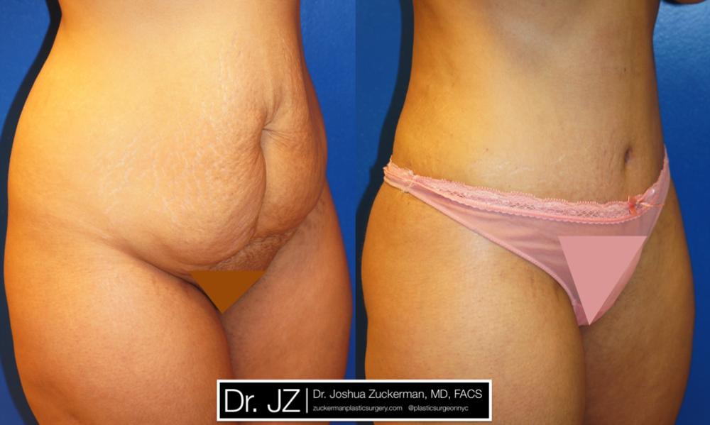 Featured Tummy Tuck Surgery (Abdominoplasty) #1 by Dr. Joshua Zuckerman, Right Oblique View
