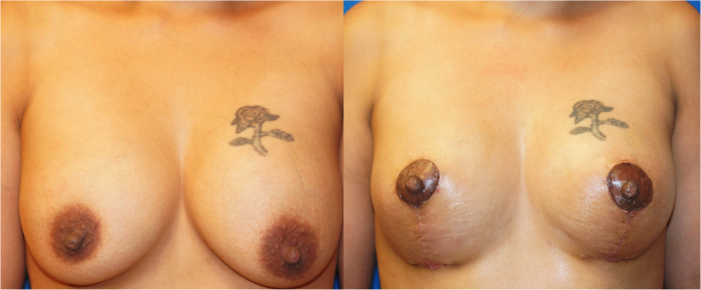 Featured Breast Lift (Mastopexy) #2 by Dr. Joshua Zuckerman, Frontal View