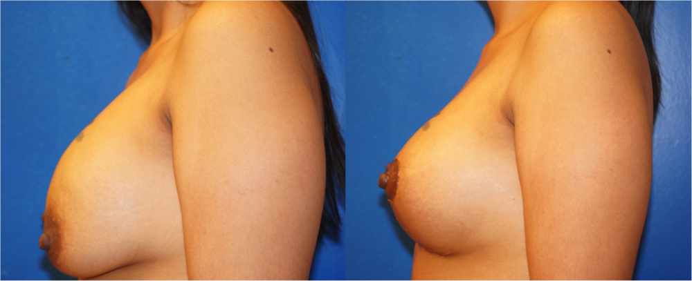 Featured Breast Lift (Mastopexy) by Dr. Joshua Zuckerman, Left Profile View