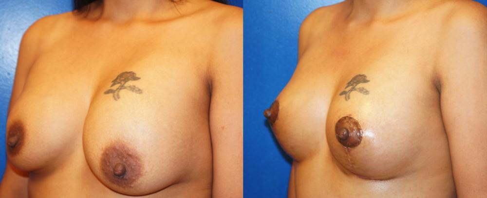 Featured Breast Lift (Mastopexy) #2 by Dr. Joshua Zuckerman, Left Oblique View