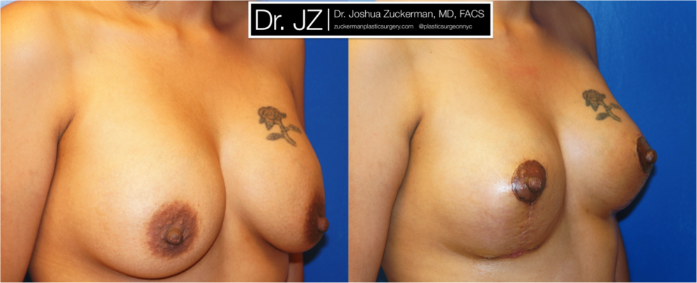 Featured Breast Lift (Mastopexy) by Dr. Joshua Zuckerman, Right Oblique View