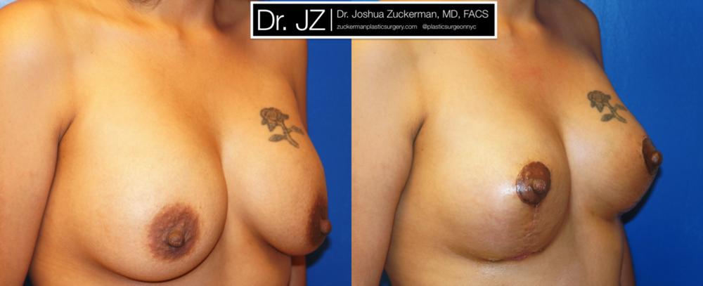 Featured Breast Lift (Mastopexy) #2 by Dr. Joshua Zuckerman, Right Oblique View