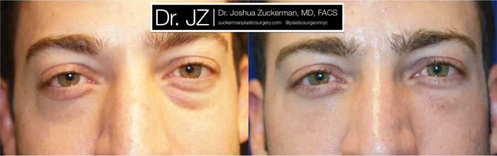 Featured Blepharoplasty (Eyelid Surgery) #3 by Dr. Joshua Zuckerman, Frontal View