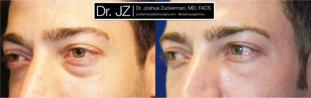 Featured Male Plastic Surgery (Eyelid Surgery) #2 by Dr. Joshua Zuckerman, Left Oblique View