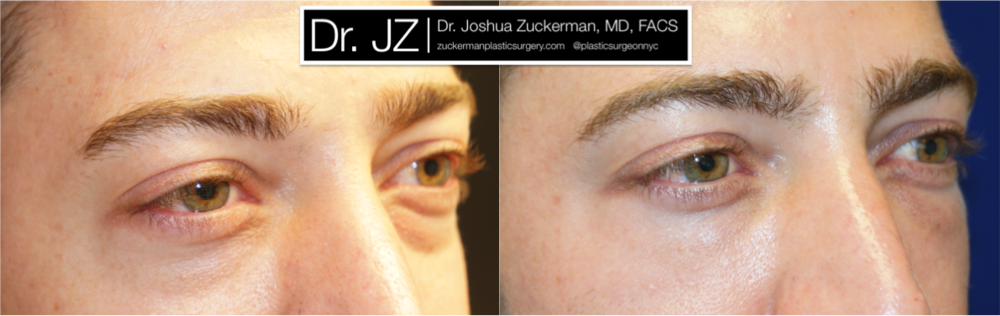 Featured Male Plastic Surgery (Eyelid Surgery) #2 by Dr. Joshua Zuckerman, Right Oblique View