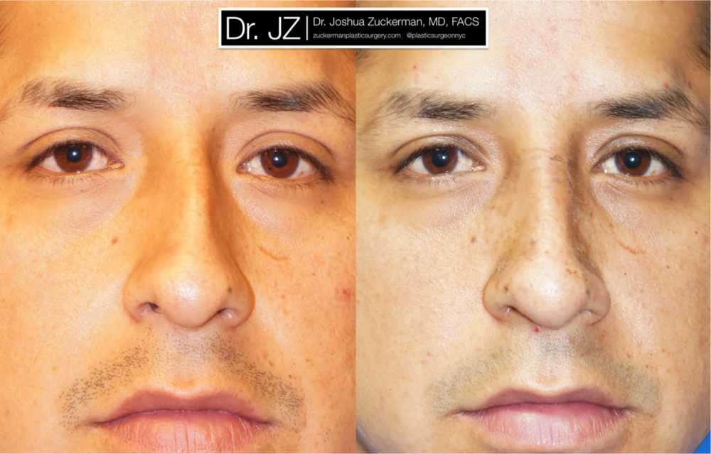 Featured Male Plastic Surgery (Nose Surgery) #3 by Dr. Joshua Zuckerman, Frontal View