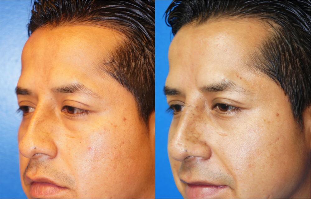 Featured Male Plastic Surgery (Nose Surgery) #3 by Dr. Joshua Zuckerman, Left Oblique View