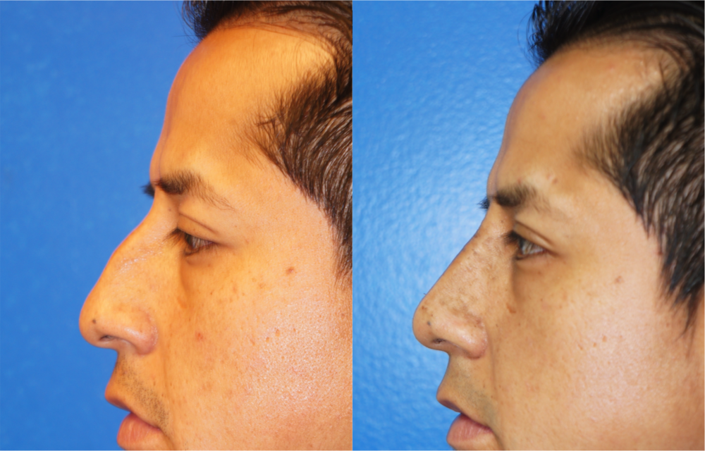 Featured Male Plastic Surgery (Nose Surgery) #3 by Dr. Joshua Zuckerman, Left Profile View
