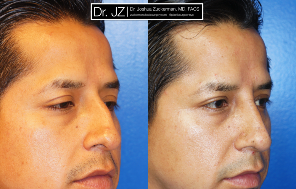 Featured Male Plastic Surgery (Nose Surgery) #3 by Dr. Joshua Zuckerman, Right Oblique View