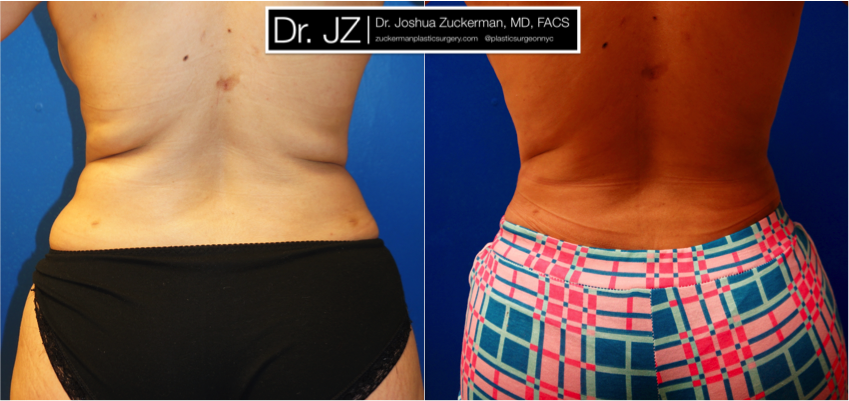 Featured Liposuction Result #3 by Dr. Joshua Zuckerman, Back View