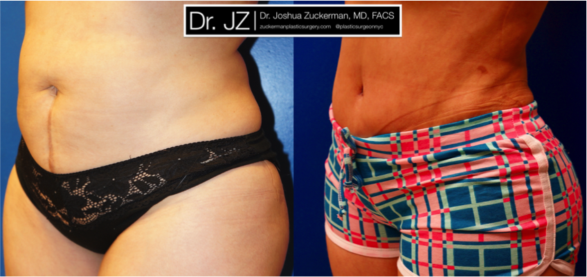 Featured Liposuction Result by Dr. Joshua Zuckerman, Left Oblique View